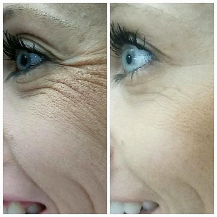 These are before and afters on my friend and now coworker @jessicaelizabeth05 this is a month and a half 45 days in with Redefine and the Amp md roller. Why Rodan Fields? Because its a 60 day empty bottle money back guarantee. What other premium skin care product has offered that risk free deal? #rodanandfields #changingskinchanginglives by rachellechurch