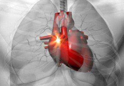 Top-Home-Remédios-Para-Heart-palpitações