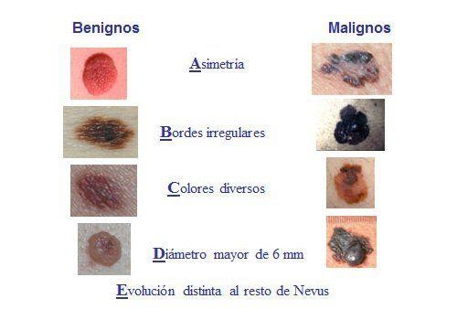 Conoce las señales y síntomas que nos permiten alertarnos d un posible cáncer de piel. La mejor forma de prevenirlo es estar bien informados.