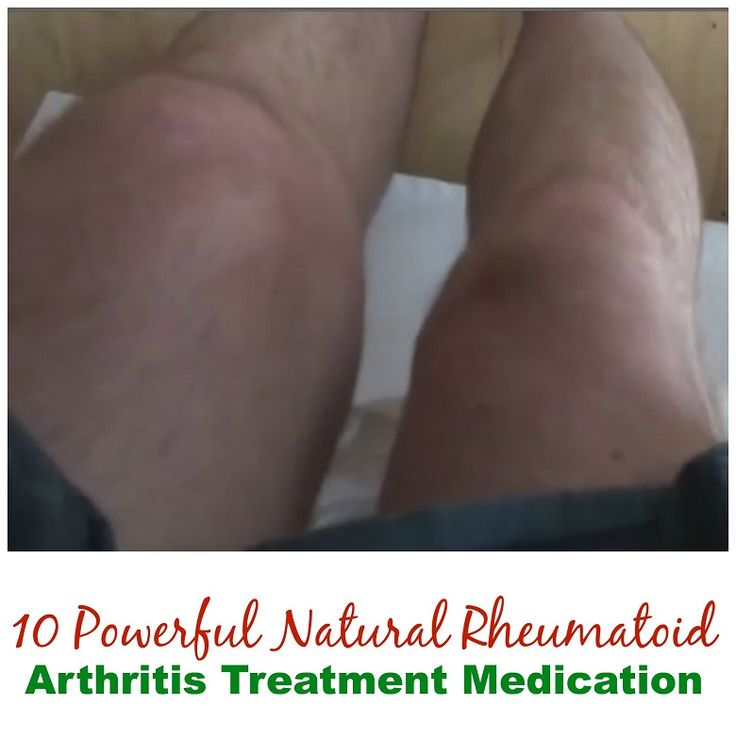 These rheumatoid arthritis treatment medication help eliminate RA symptoms naturally, reduce toxic RA drugs, eliminate fatigue and restore energy levels.