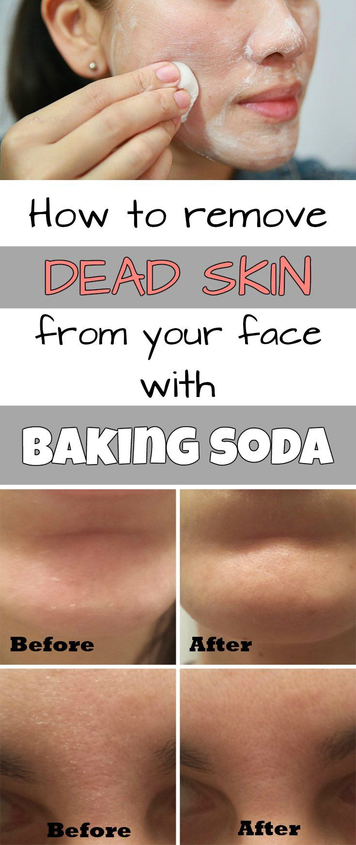 How to remove dead skin from your face with baking soda - RealBeautyTips.net
