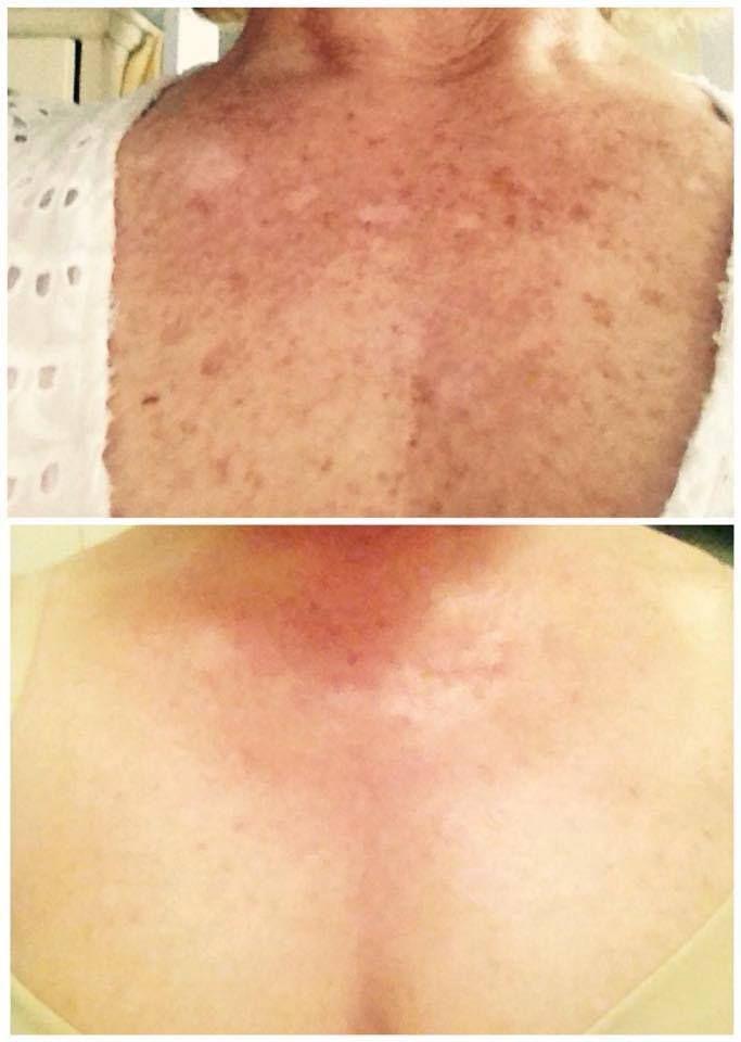 Facial Sun Spots 68