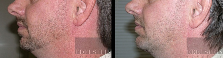 Facial implant for the chin. Male patient. Side view.