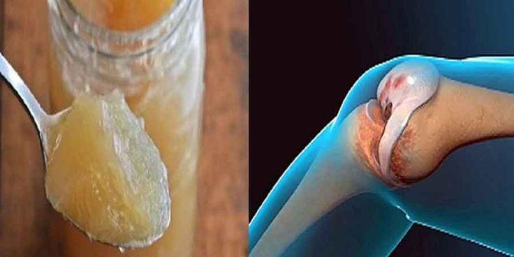 Leczenie kolan i stawów jest możliwe dzięki tej sprawdzonej domowej metodzie. Za pomocą tej receptury uda Ci się nawet poprawić strukturę kości. Wielu specjalistów zaznacza, że ból stawów oraz kolan to następstwo zachowywania niewłaściwej postawy