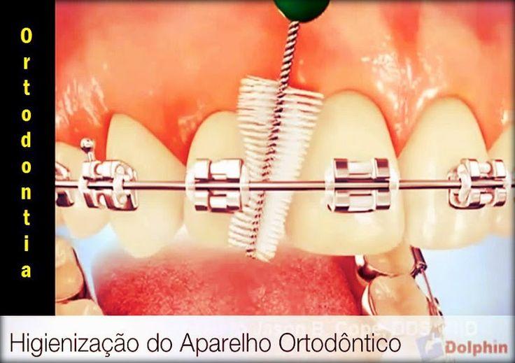 Video: Higienização do Aparelho Ortodôntico | Directorio Odontológico
