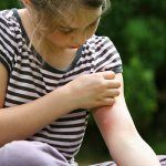 8 Ways To Relief Bug Bites, Mosquito Bite Treatment