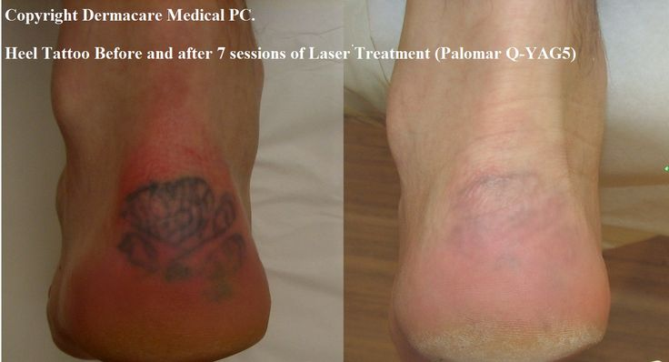 Check out this great tattoo website now http for What is the cost of tattoo removal