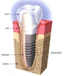 Dental Implants: Isn't it time To change The Tooth? #dental_implants_cost #Dental_Implants_Procedure #dental_implants
