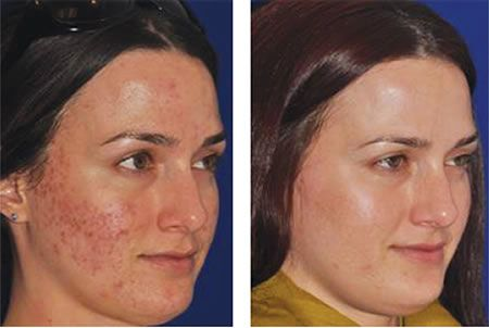 Before and Afters - Eclipse Micropen Call today to scedule your treatment with Tessa Wells our Medical Esthetician at Crabbapple Internal Medicine.  770.594.1233 45 West Crossville Road, Suite 501 Roswell, GA 30075  Email us at healthyskin@forrestsmithmd.com