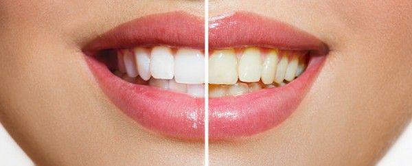 ¿Conviene realizar un blanqueamiento dental casero? - http://www.partidosocialista.com.ar/conviene-realizar-un-blanqueamiento-dental-casero/