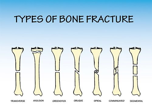Types and Causes of Bone Fractures   Physical Therapy ...