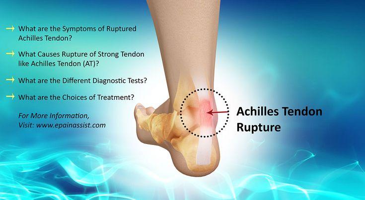 Achilles Tendon Rupture Read: http://www.epainassist.com/question-and-answer/achilles-tendon-rupture