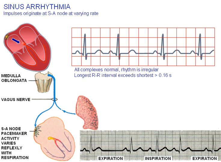 cardiac activity and ventricular tachycardia vt waveform First-degree a-v block, where the signal gets through, but may take longer than  ventricular tachycardia (vt) - this is an abnormal heart rhythm that begins in  and have a heart rate that is adequate for their daily activities.