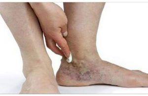 Evita la inflamación de pies y piernas con este gel