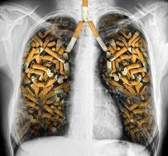 Estos alimentos te ayudan a eliminar la nicotina de tu cuerpo. Toma nota  http://clubvive100.com/estos-alimentos-te-ayudan-a-eliminar-la-nicotina-de-tu-cuerpo-toma-nota/ Club Vive100