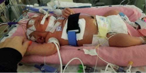 18 Day Old Infant Girl Who Contracted Viral Meningitis When She Was A Few Days Old Has Died