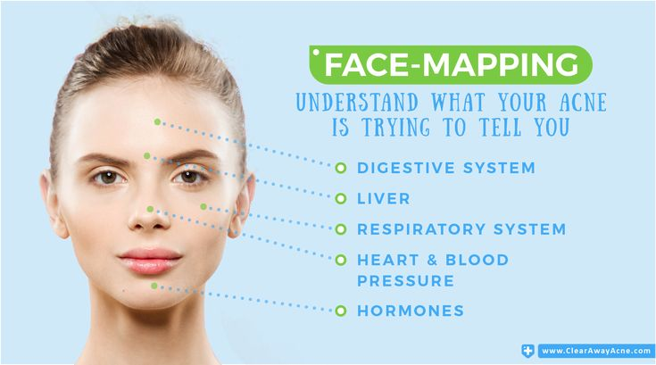Acne Face Mapping -  5 Proven Ways to Fight Acne Better & Faster
