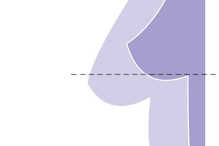 Centrum plastickej&estetickej chirurgie - Modelácia prsníkov (mastopexia)