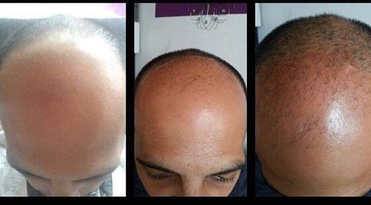 Saç ekiminden önceki son çıkış #lrecapin ������ #saçekimi #saç #kel #kellik #tavsiye #çare #bakım #erkek #kadın http://turkrazzi.com/ipost/1523858097188271310/?code=BUl1N2bAnTO