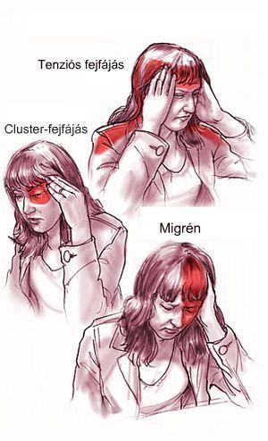 Migrén az infarktus és agyvérzés előjele is lehet Testi lelki gyorssegély - G-Portál