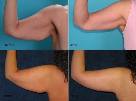 Ways You Can Reduce Arm Fat (2)