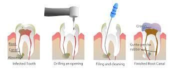 The tooth is having a pulp chamber that contains the root canal. The root canal is generally a thin branch that holds the teeth in the jaw.