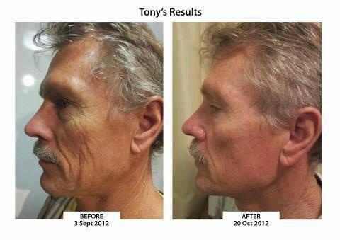 Tony transformed with the ageLOC Tru Face Essence Ultra (clinical name Ethocyn) guaranteed to rebuild the elastin (broken rubber bands in our skin causing sagging) back to our 20 year something levels and with the transformation of ageLOC now added......just keeps getting better and better adding ageLOC to target different parts if the body inside and out !
