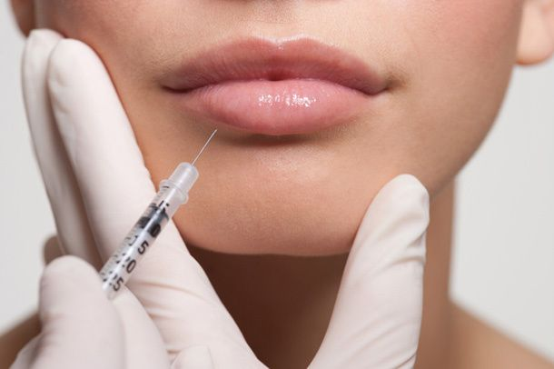 5 Things You Didn't Know About Lip Injections | Daily Makeover