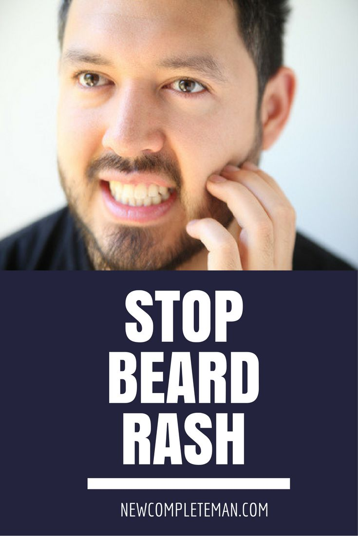 Beard rash can be a tedious problem for any man. Let's look at how to stop beard rash for good in this post.