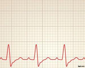 Plantilla PPT de Ritmo Cardiaco es un diseño de Ritmo Cardíaco original para presentaciones de medicina pero también para usar en otro tipo de presentaciones de Salud