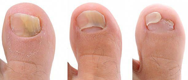 How Long To Treat Fungal Nail Infection-Fungal Infection Of