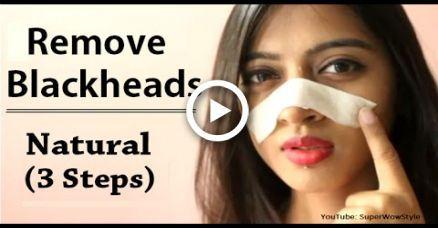 So entfernen Sie Mitesser aus Nase & Gesicht
