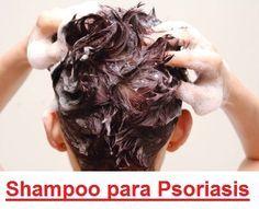 Shampoo para la Psoriasis - Funciona el Champú para Tratar la Soriasis Capilar
