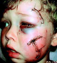 warning:  graphic images (victims of pitbull attacks)