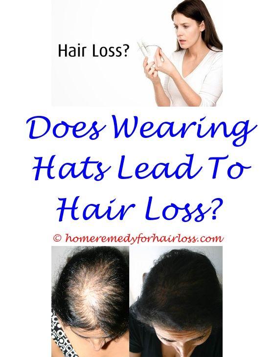 does kidney failure cause hair loss - russian blue cat hair loss.jamaican black castor oil hair loss hair repair does monistat 7 work for hair loss medical hair loss specialist hair place nyc 2877732933