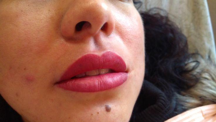Labios recién terminados, relleno de mucosa labial, Micropigmentacion
