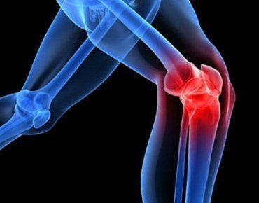 Potężna mikstura, którą za chwilę poznasz jest zbawieniem dla chorych stawów. Przywraca ona prawidłową strukturę kości oraz funkcje stawów i kolan. Według ekspertów z dziedziny fizjoterapii, niewłaściwa postawa ciała jest główną przyczyną bólupleców, stawów i nóg. Problemy te często prowadzą do dalszych komplikacji, więc trzeba zrobić wszystko, aby temu zapobiec. Jak wykonać miksturę odnawiającą stawy i kolana? Oto przepis: Składniki: pół litra miodu 2 łyżkinasion siemienia lnianeg...