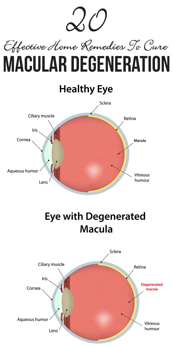 20 Effective Home Remedies To Cure Macular Degeneration
