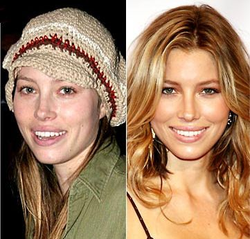 Jessica Biel Plastic Surgery - Rhinoplasty, Collagen and Lip Injections - http://sugarsurgery.com/jessica-biel-plastic-surgery-rhinoplasty-collagen-lip-injections/ #JessicaBiel #plasticsurgery Many people wonder about whether Jessica Biel has undergone plastic surgery procedures or not. Lip injections and rhinoplasty are often the procedures that people question the most. Whether or not she has undergone plastic surgery, it is ...