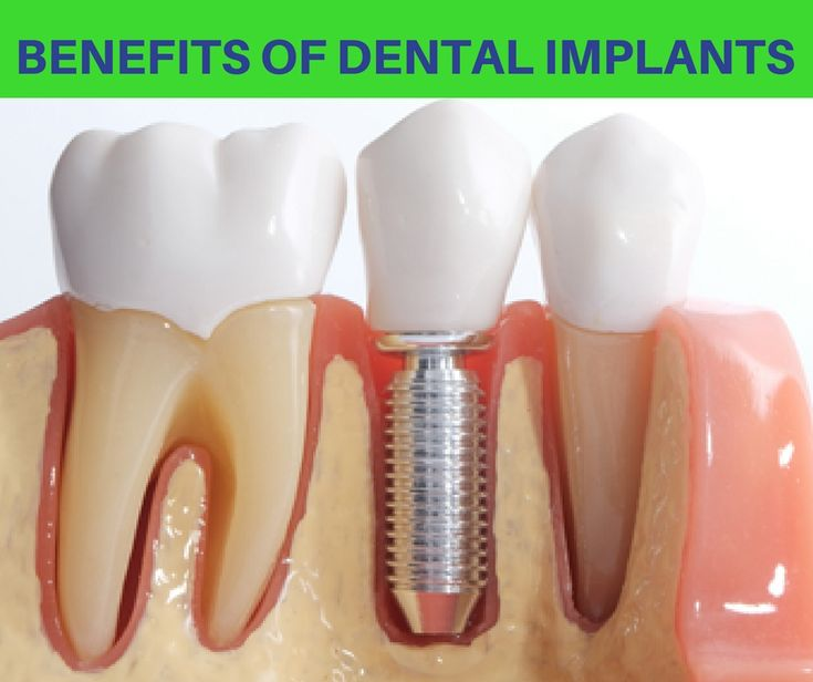 Dental Clinic Bangalore – Confident Dental Care offers best dental services as Root Canal Treatment (RCT), Dental Implants, Cosmetic Dentistry, Cost
