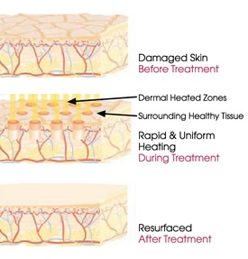 64 Best Images About Fractional Resurfacing Laser On Pinterest