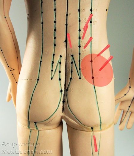 The sciatic nerve forms as one thick nerve at the inferior border of Piriformis muscle, the specific treatment applied to this area is vitally important for both L5 and S1 impingement cases.  However, standard acupuncture points in the region such as BL63 or BL64 are often insufficient to produce a desired effect.  http://www.acupuncturemoxibustion.com/acupuncture-points/sciatica-points/