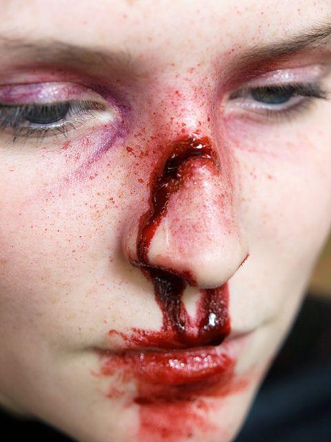 broken nose - monik walmsley