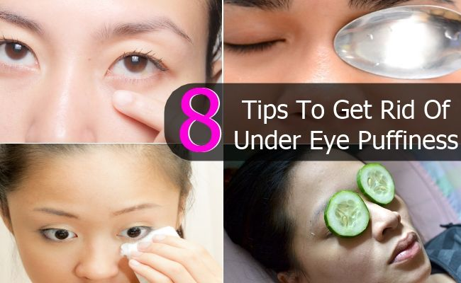 how to get rid of under eye hollows naturally