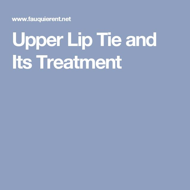 Upper Lip Tie and Its Treatment