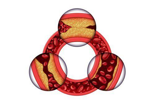 Poziom cholesterolu, a płatki owsiane: 3 metody