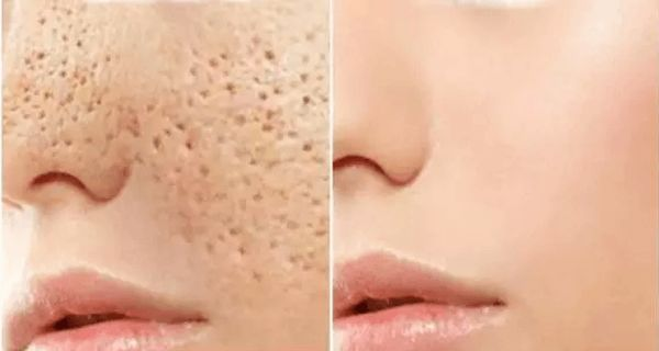 Big pores?! Well, many people have them and these people use different types of cosmetic products and remedies to make these pores less visible and shrink them (as much as possible). We all know that there are different cosmetic products on the market today, but (unfortunately) they are very expensive.So, ladies, you should ask yourself