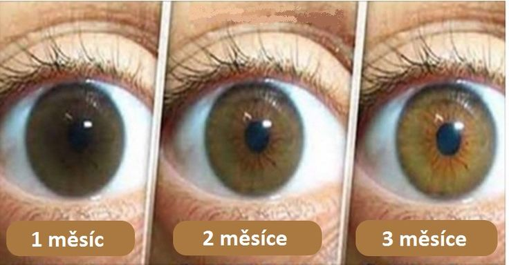 Katarakta neboli šedý zákal je dnes nejčastější příčinou špatného zraku či dokonce slepoty ve světě. Tento přírodní lék mu dokáže předejít.