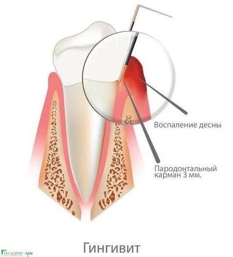 😬 Гингивит - самая простая форма воспаления дёсен, возникающая при слабой нагрузке на жевательный аппарат и/или при недостаточной гигиене полости рта. У гингивита симптомы проявляются главным образом в покраснении дёсен, а также в кровоточивости во время чистки зубов.   ❗️ Не забывайте про ежедневную гигиену, свежие фрукты и овощи, а также навещать стоматолога раз в пол года. Такой комплекс мер защитит ваши зубы и десна. #Дельта #Мурманск