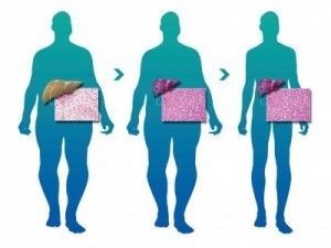 Pre-op gastric diet for cleansing and shrinking the liver.